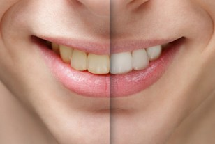 Teeth_Whitening2