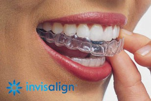 Invisalign - Cosmetic Treatment